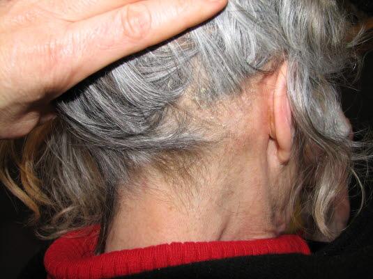 Seborroiskt eksem i hårbotten