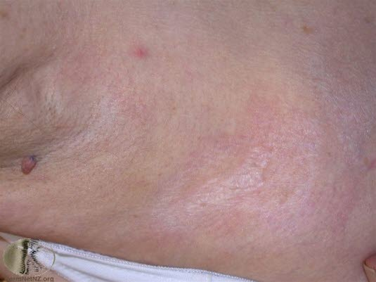 Lichen sclerosus, extragenital