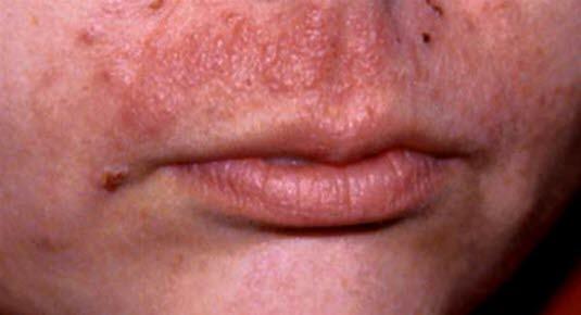 Allergiskt kontakteksem, läppar