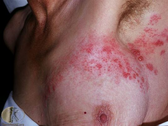 Herpes zoster, thorakal
