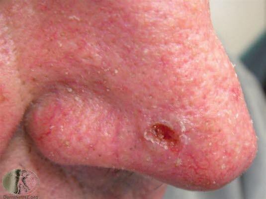 Basalcellskarcinom, näsa