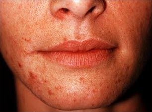 Perioral dermatit, framifrån