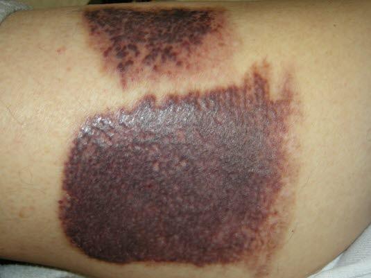 Trombotisk trombocytopen purpura