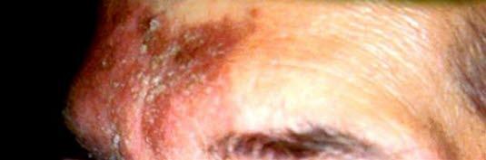 Seborroiskt eksem i ögonbryn och panna