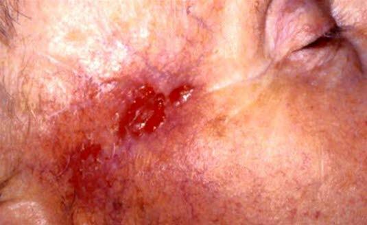 Basalcellskarcinom, dåligt avgränsat