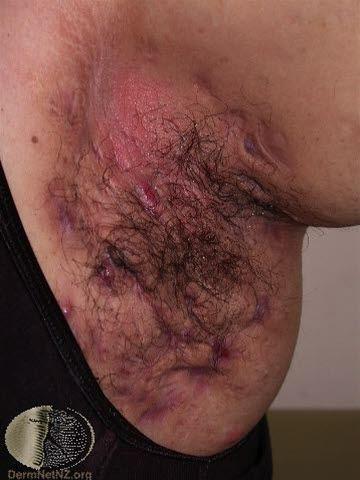 Hidradenitis suppurativa, armhåla, uttalad