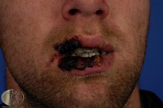 Läkemedelsexantem, Steven Johnson, ansikte