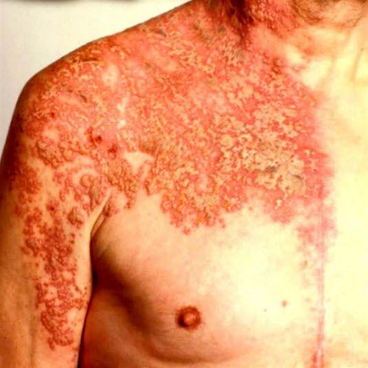 Herpes zoster, halvsidig