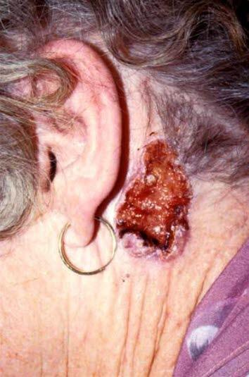Basalcellskarcinom, nodulärt