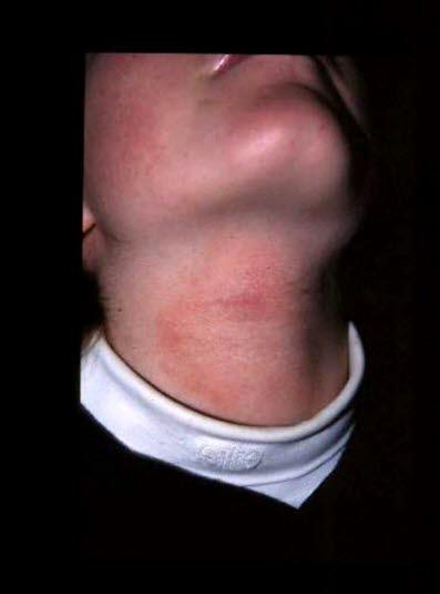Nevus, epidermalt, kryobehandlat