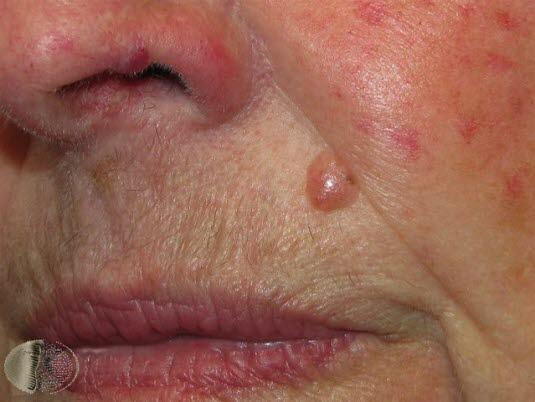 Basalcellskarcinom, ansikte