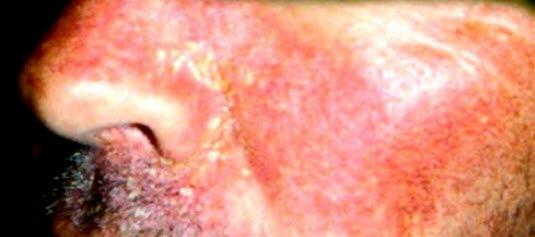Seborroiskt eksem i ansiktet