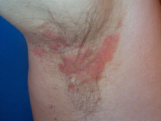 Seborroiskt eksem  i armhålan